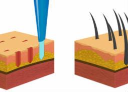"""""""ترويجي""""- دليلك لعملية زراعة شعر آمنة وناجحة دون ألم"""